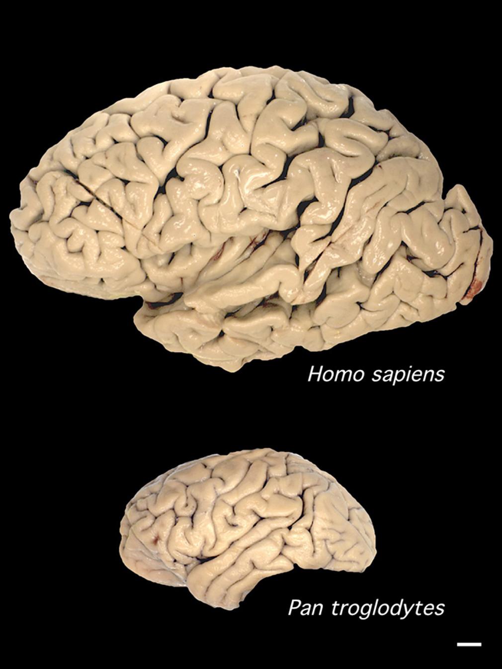 Human and Chimp brain